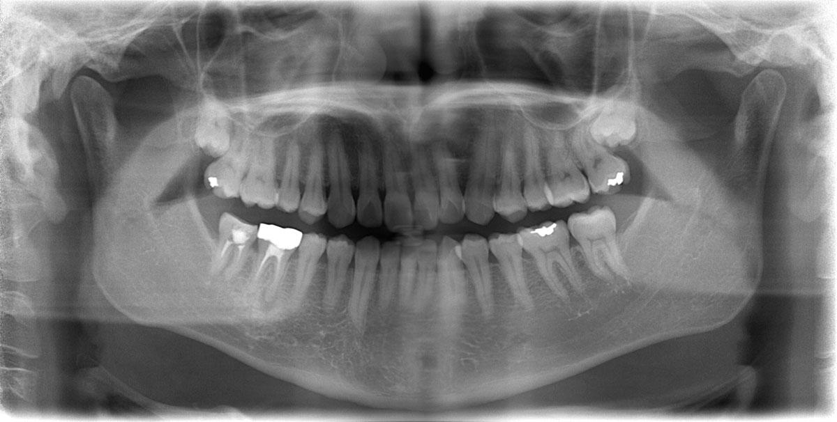 歯科用CT SOLIO X